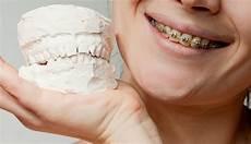exercises to correct overbite correcting an over or underbite ismile orthodontics