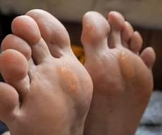 pied de le 5234 ongles jaunes dites leurs adieu pied zen