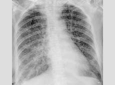 chest x ray shows pneumonia