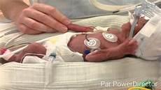 bebe prematur 233 a 5 mois
