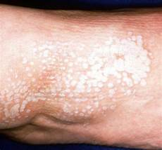 lichen sclerosus bilder lichen sclerosus dermatological diseases epharmapedia