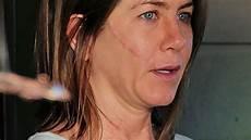 f 252 r quot cake quot aniston mit narbe im gesicht - Narben Im Gesicht