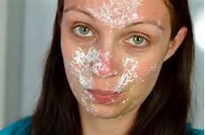 blushes and more tipps tricks bei leichtem sonnenbrand