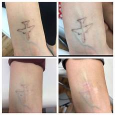 laser tattoo removal new london ink tattoos