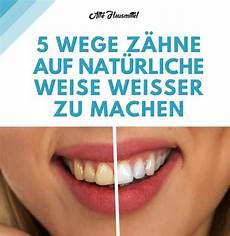 weiße zähne hausmittel hausmittel f 252 r wei 223 e z 228 hne im nu haben sie helle z 228 hne