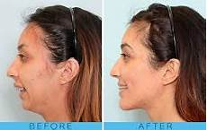 exercises to correct overbite image result for orthognathic surgery overbite orthognathic surgery jaw surgery corrective