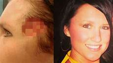 trou peau visage homme paralysie migraines trou au visage d 233 veloppe un
