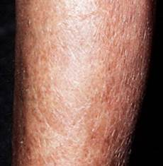 extrem trockene haut skin on legs pictures extremely skin between