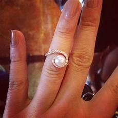wedding ring dermatitis white gold wedding rings sets ideas