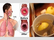 food in lungs what happens