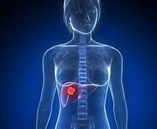 voile au poumon tumeur du foie sympt 244 mes traitement d 233 finition