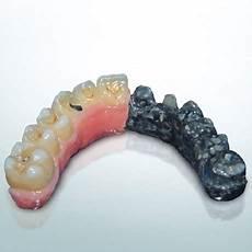 protesi dentali mobili protesi di ultima generazione in carbonio clinica
