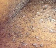 what does bump on pubic hair look like vaginal ingrown hair bumps www healtreatcure org pinterest hair ingrown hairs and hair bumps