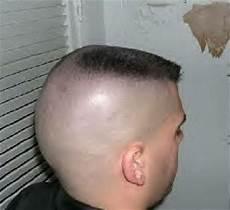 what is a horseshoe haircut