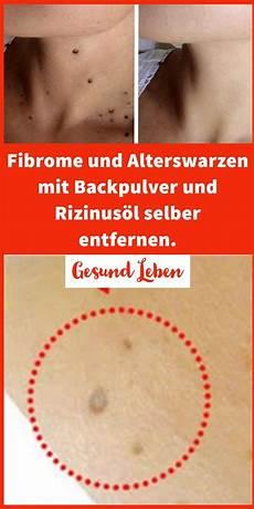 Entfernen Sie Fibrome Und Alterswarzen Mit Backpulver Und