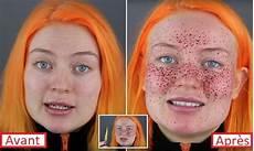 maquillage vire une youtubeuse se fait des taches de rousseur au henn 233