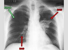 can pneumonia scar lungs