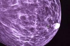 Cancer Du Sein D 233 Couverte D Une Prot 233 Ine Responsable De