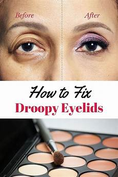 How To Fix Droopy Eyelids Droopy Eye Makeup Droopy