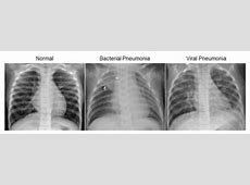 pneumonia x ray images interpreting