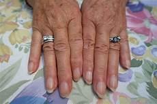 fingernägel längsrillen ursache ᐅᐅ l 228 ngsrillen fingern 228 gel warum entstehen sie