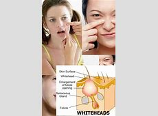 how to remove hard whiteheads