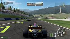 Project Cars 2 S Upgrades A Different Focus On Xbox