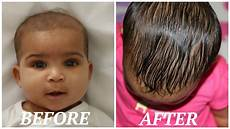 Why Does Babies Lose Their Hair