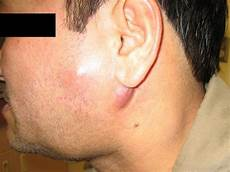 geschwollene lymphknoten hals einseitig swollen lymph nodes symptoms causes and complications