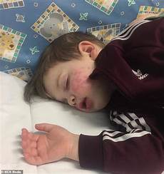 herpes bei babys s warning after from relative left baby