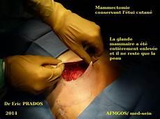 duree operation mastectomie mammectomie