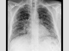 normal lung x ray vs pneumonia