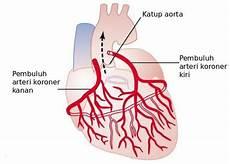 Penyakit Jantung Koroner Cad Gejala Penyebab Cara