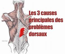cote cassée douleur dans le dos douleur dans le milieu du dos pour en finir avec le mal de dos