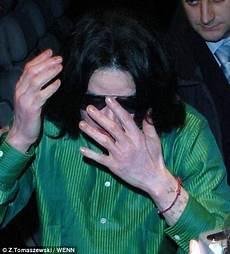 Michael Jackson Haut - hub michael jackson s suffering from the