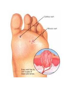 how do you know if a common wart is dying warts 171 k w homeopathic medicine and wellness clinic