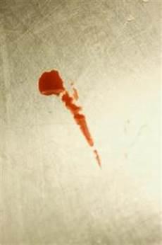taches de sang sur tissu comment enlever les taches de sang s 233 ch 233 sur les v 234 tements