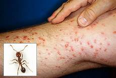 33 Things A Doctor Needs To And Remember About Bug Bites