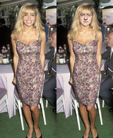 Pamela Anderson Pre Surgery