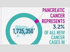 signs of pancreatic cancer in women