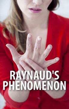 I Postural Orthostatic Tachycardia What Is Raynaud