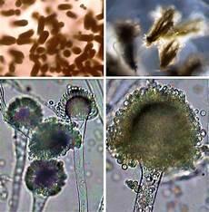 Chemical Anatomi Dan Morfologi Jamur