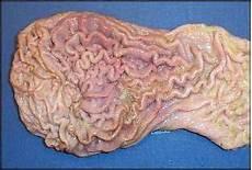 Anatomi Lambung Yanjuz