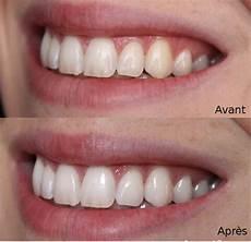 blanchir ses dents avec du curcuma dentifrice maison