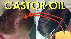 black castor oil hair growth before and after castor oil for hair growth before and after photos stop hair loss with castor oil grow sexy