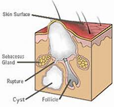 Diagram Of Sebaceou Cyst In by Acne 101 Understanding Acne And Acne Treatments