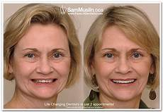 exercises to correct overbite dental facelift vs surgical facelift face lift dentistry braces treatment dentistry