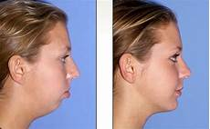 exercises to correct overbite correcting overbite and chin deficiency by http www wrinkleremovalprocedures com wrinkle