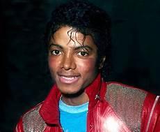 Michael Jackson Vitiligo - how michael jackson struggled with vitiligo and turned