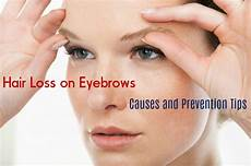 eyebrow hair loss what to do about your thinning eyebrows hair loss on eyebrows causes and prevention tips stylish walks